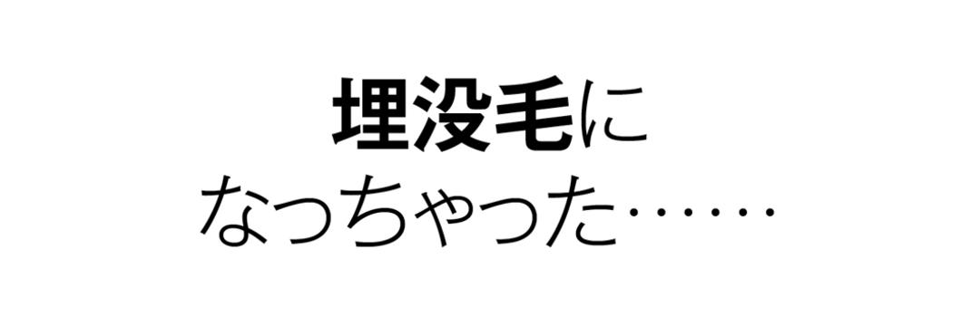 ムダ毛のお悩みク Q&A